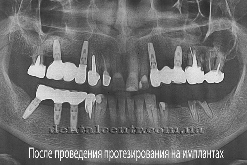 Панорамный снимок после проведения протезирования на зубных имплантах
