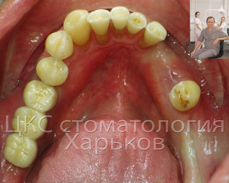 изготовлен мост на зубных имплантах