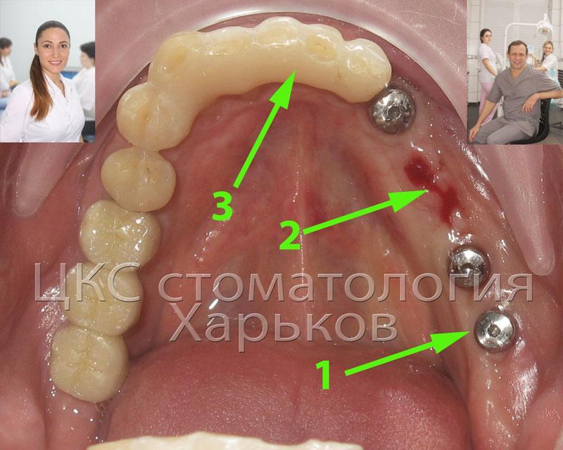 зубная имплантация плюс шинирование