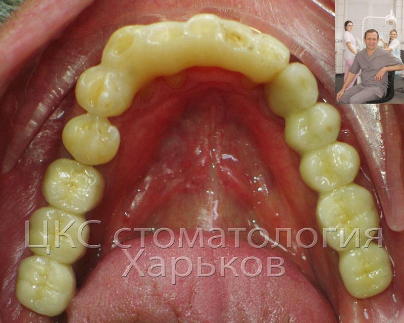 протезы на зубных имплантах фото