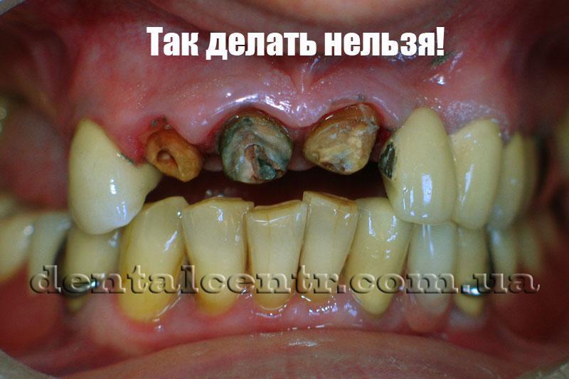 Фотография зубов после расцементировки коронок