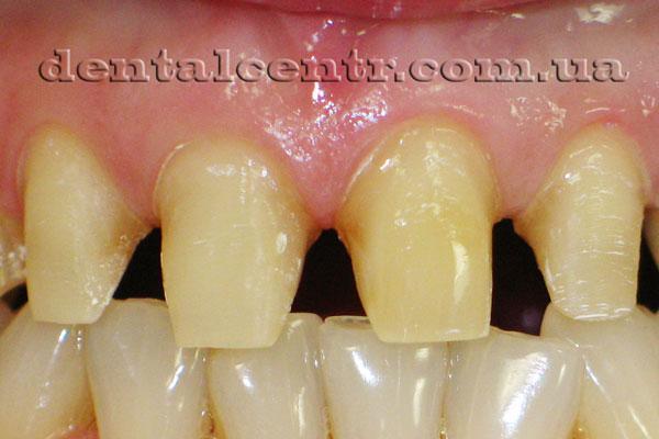 фото правильной подготовки зубов под коронки