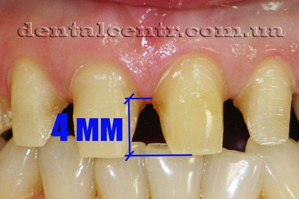 фотография высоты культы препарированного зуба