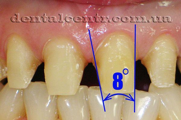 требуемая конусность  при препарировании зубов фото
