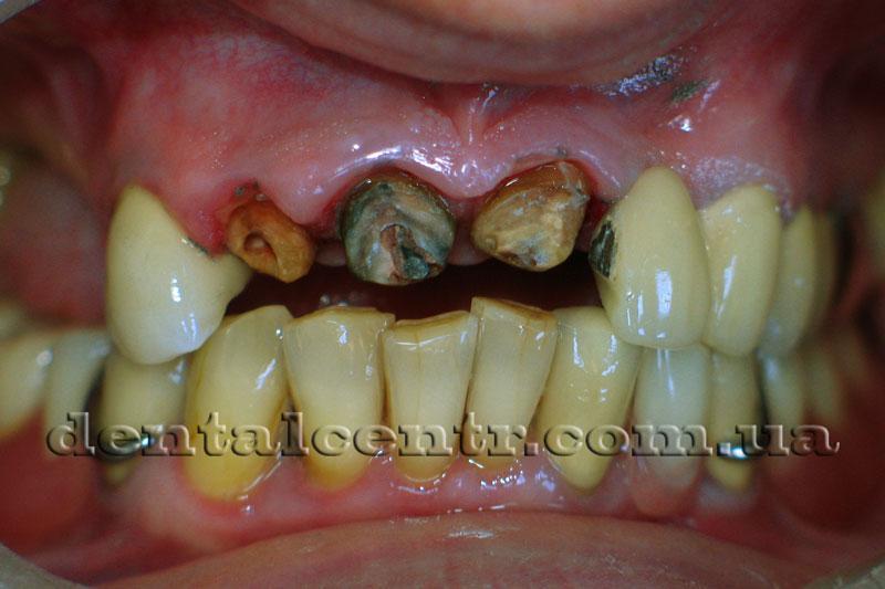 ткани двитальных зубов фото