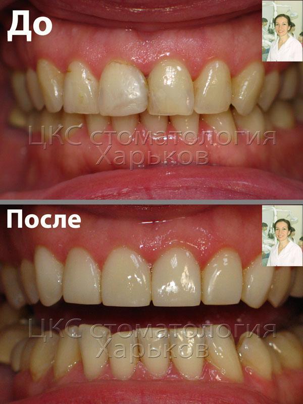 реставрация фронтальных зубов фото