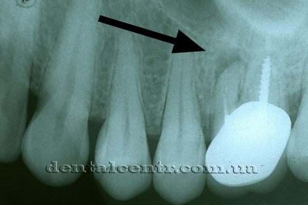 разрежение костной ткани рентгенограмма
