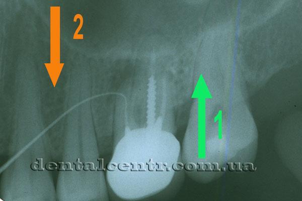 Рентгенограмма ретроградной и прямой пломбировки каналов