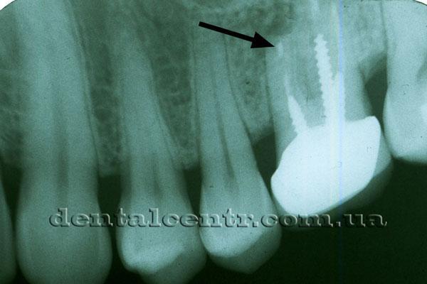 результат резекции и ретроградной пломбировки рентгенограмма