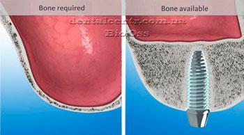 Необходимый объем кости для имплантации рисунок