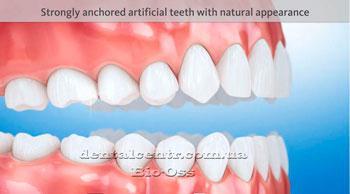 Окончательный вид зубов после протезирования керамическими коронками