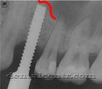 Момент приподнимания слизистой гайморовой пазухи рентгенограмма