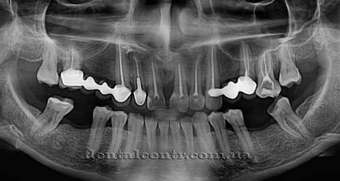 Особенности строения верхней челюсти и гайморовой пазухи