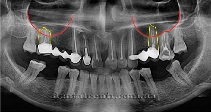 Расположение корней зубов  рентген