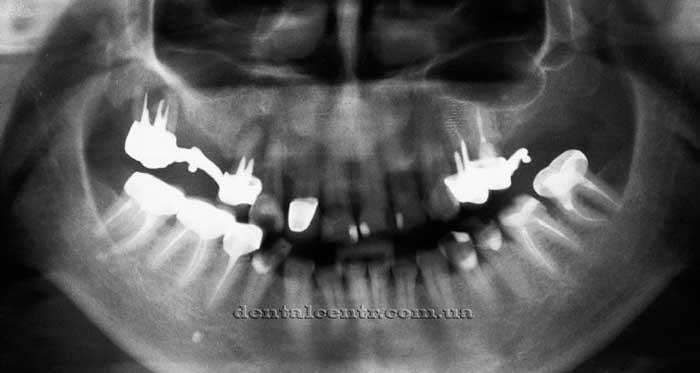 Рентгенограмма проблем боковых жевательных зубов