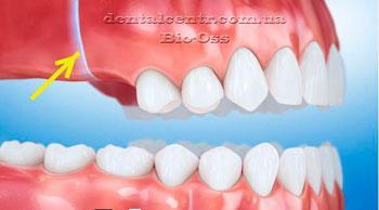 Рисунок, проблема с верхними боковыми зубами