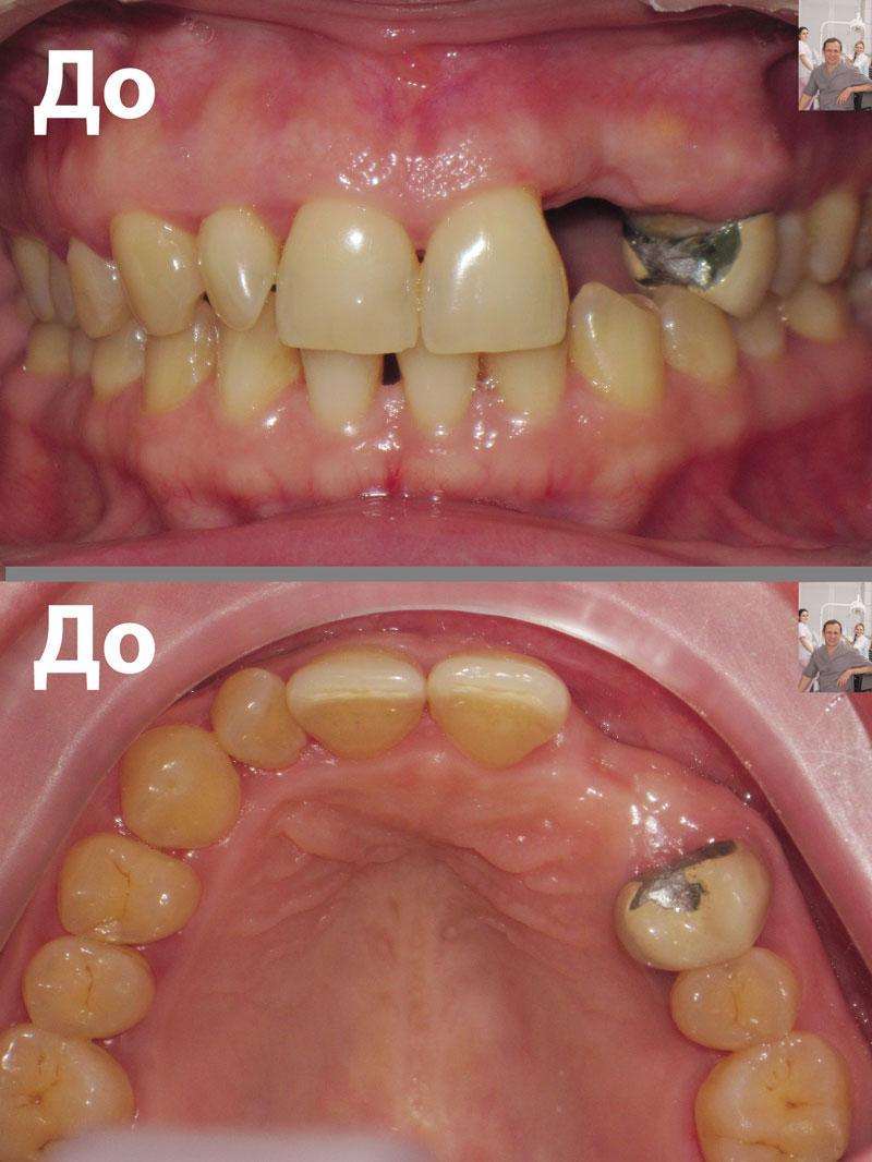 Альвеолярный отросток в области отсутствующих зубов фото