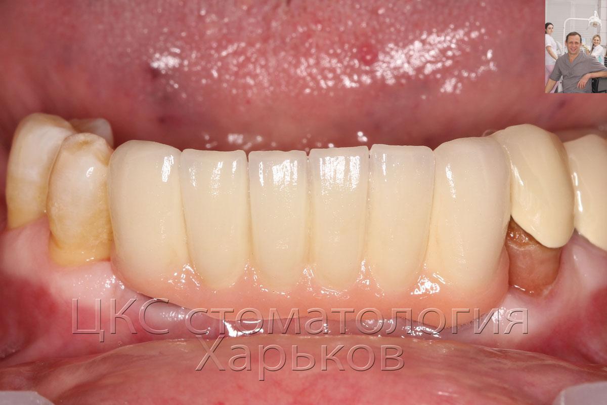 готовый зубной протез фото