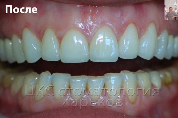 зубы верхней челюсти восстановлены керамическими винирами