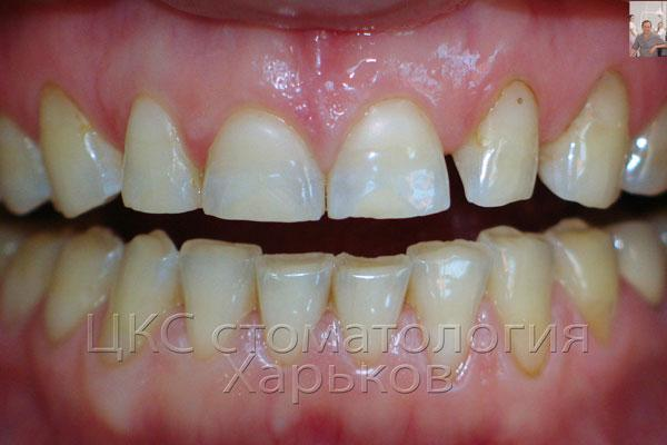 выраженная площадка стершихся зубов