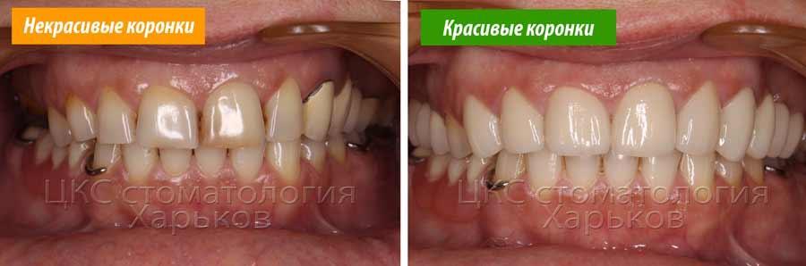 Красивые и некрасивые зубные коронки — показатель качества