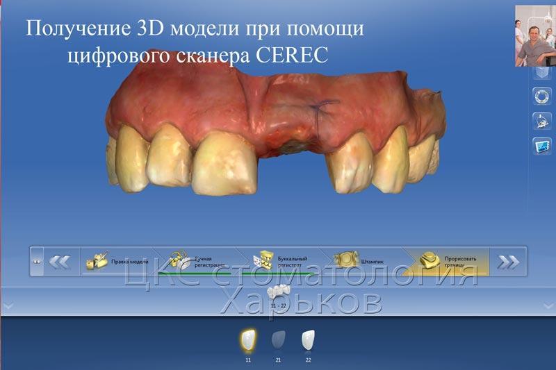 Результаты 3D сканирования