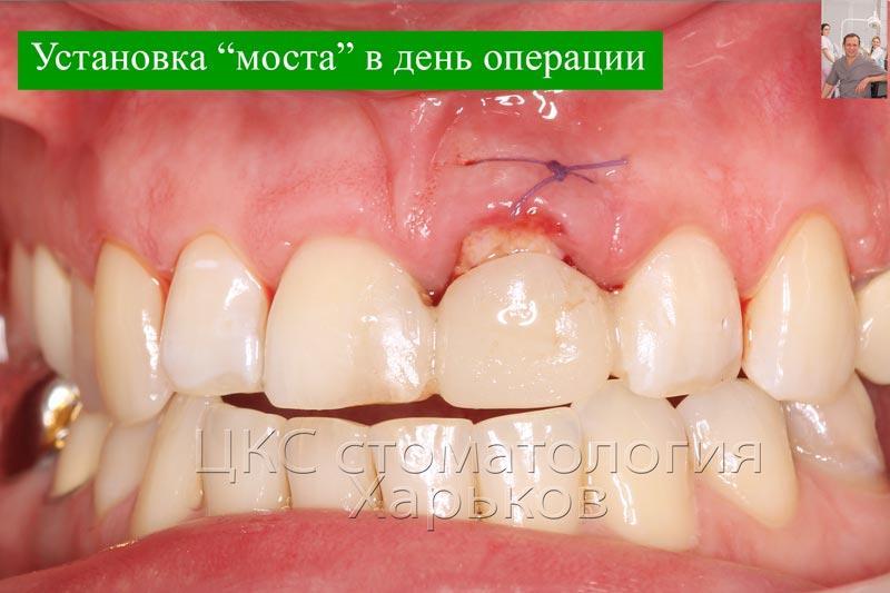 Временный зуб установлен в день операции