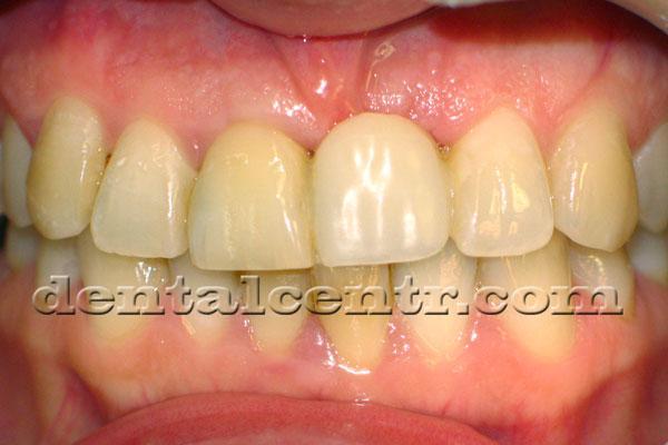 Временный зуб по типу мериленд, фотография
