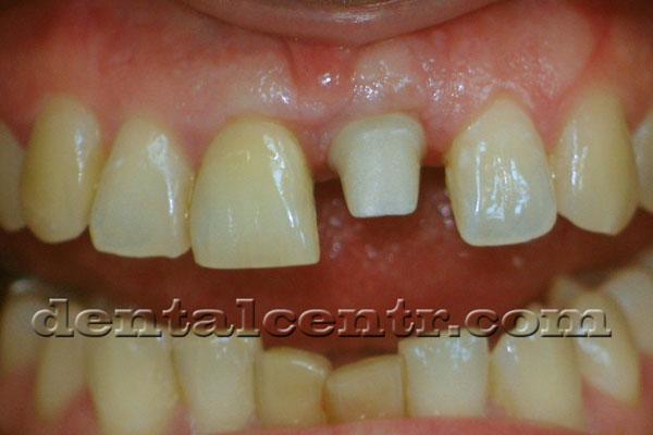 Индивидуальный абатмент установленный на зубной имплант фото