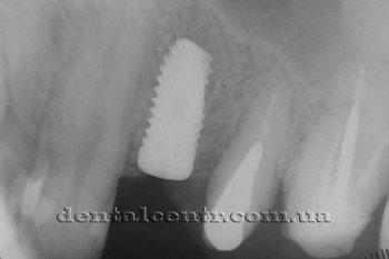 Зубной имплант, рентгенограмма