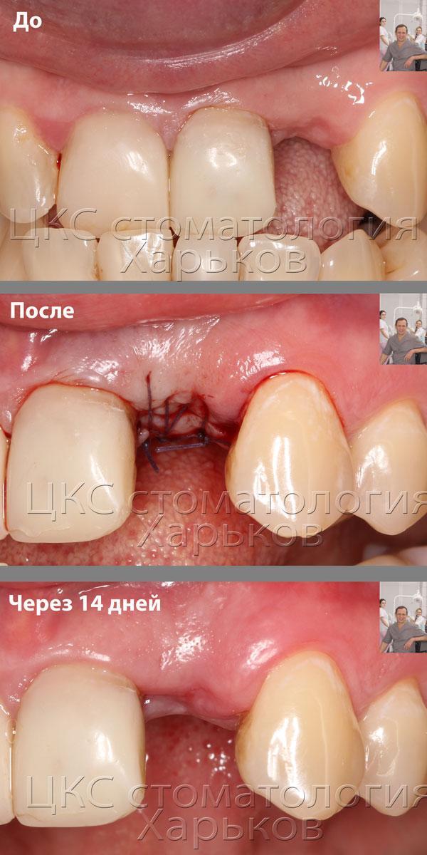 установка тела зубного имплантата