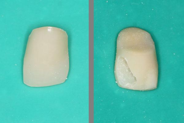 Пластмассовый зуб