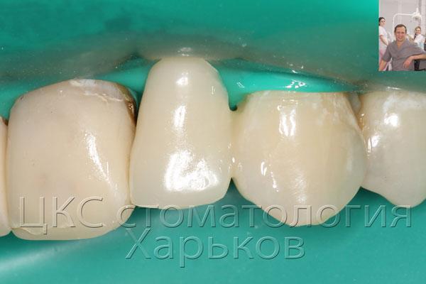 Временный зуб приклеенный фотополимерами
