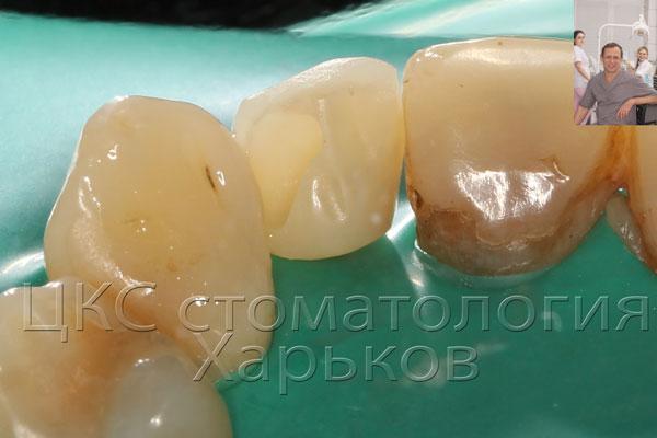 небная поверхность временного зуба