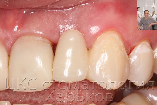 Временный зуб после первого этапа имплантации