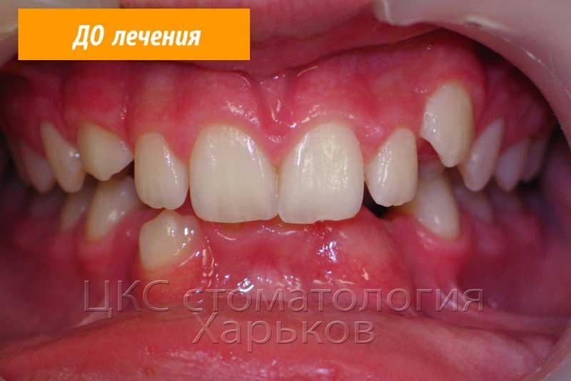 Неровные зубы двух челюстей