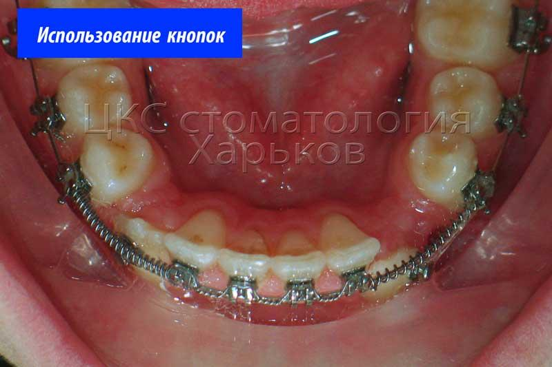 подготовка зубного ряда по ширине