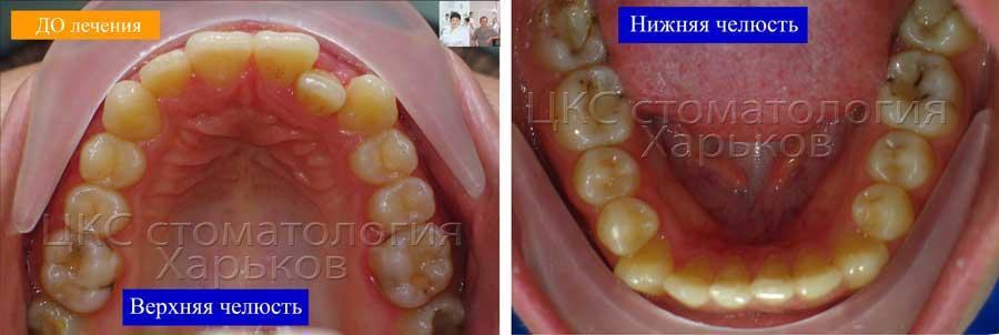 Форма зубных рядов до лечения