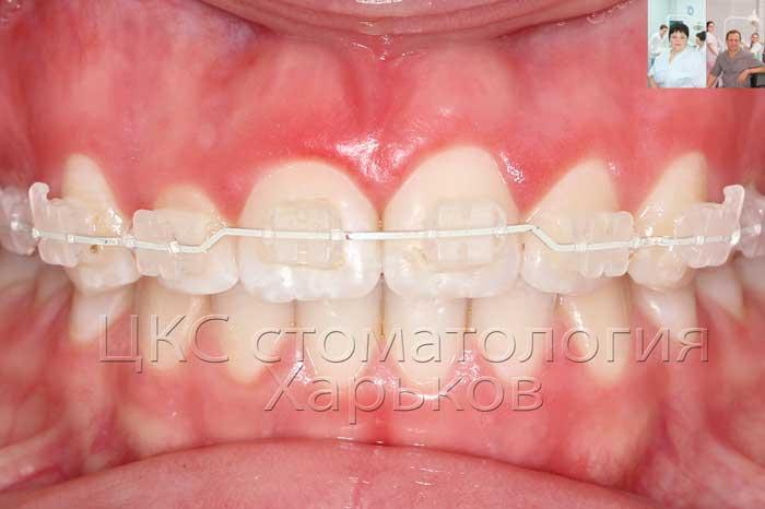 Ортодонтический прием вертикальных изгибов