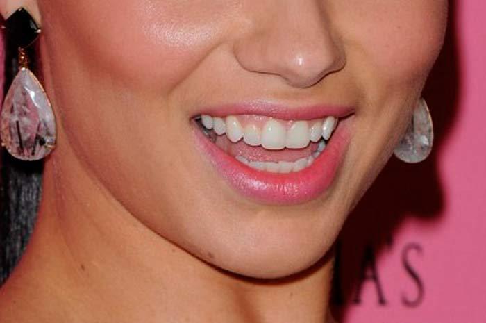 Исправить зубы Adriana Lima