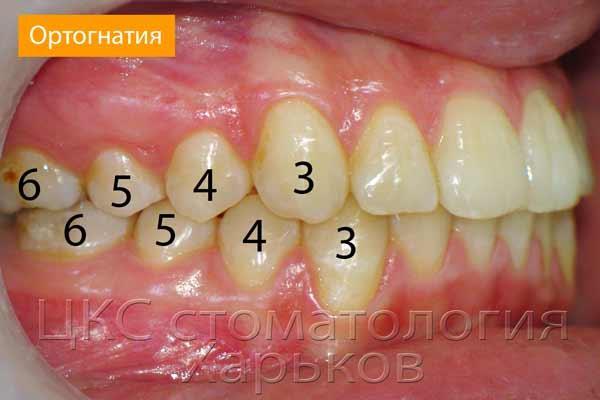 Признаки ортогнатического зубного прикуса : фото и полная характеристика
