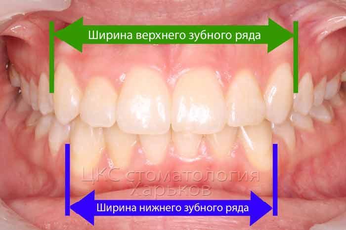 Поперечные размеры челюстей