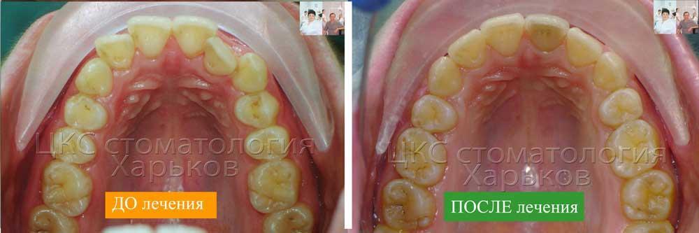 верхний зубной ряд ДО и ПОСЛЕ