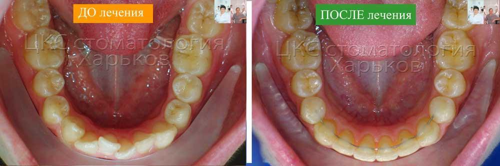 Нижний зубной ряд ДО и ПОСЛЕ