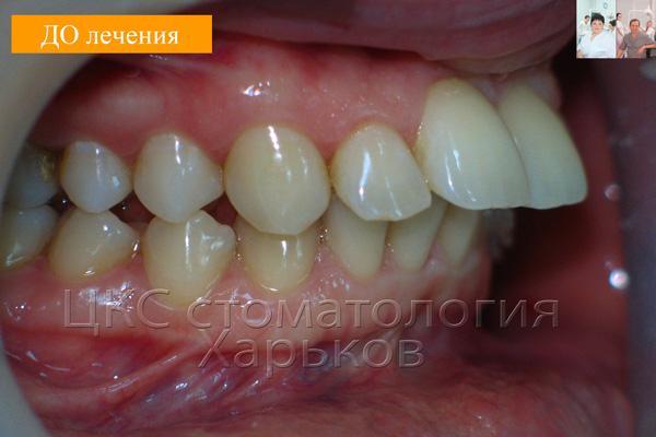 Чрезмерная инклинация зубов