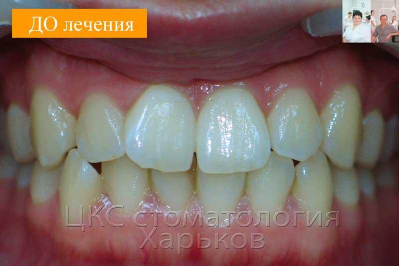 ДО ортодонтического лечения