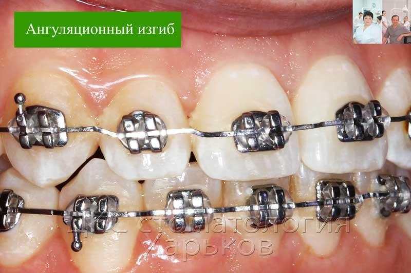 Изменение ангуляции зуба