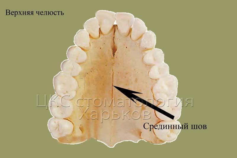 Схема строения верхней челюсти