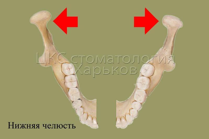 Схематично расширение нижней челюсти