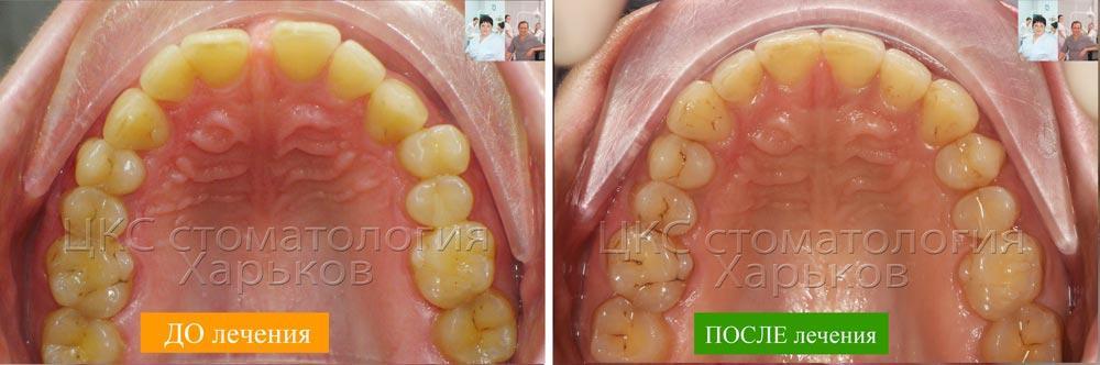 Форма зубного ряда ДО и ПОСЛЕ